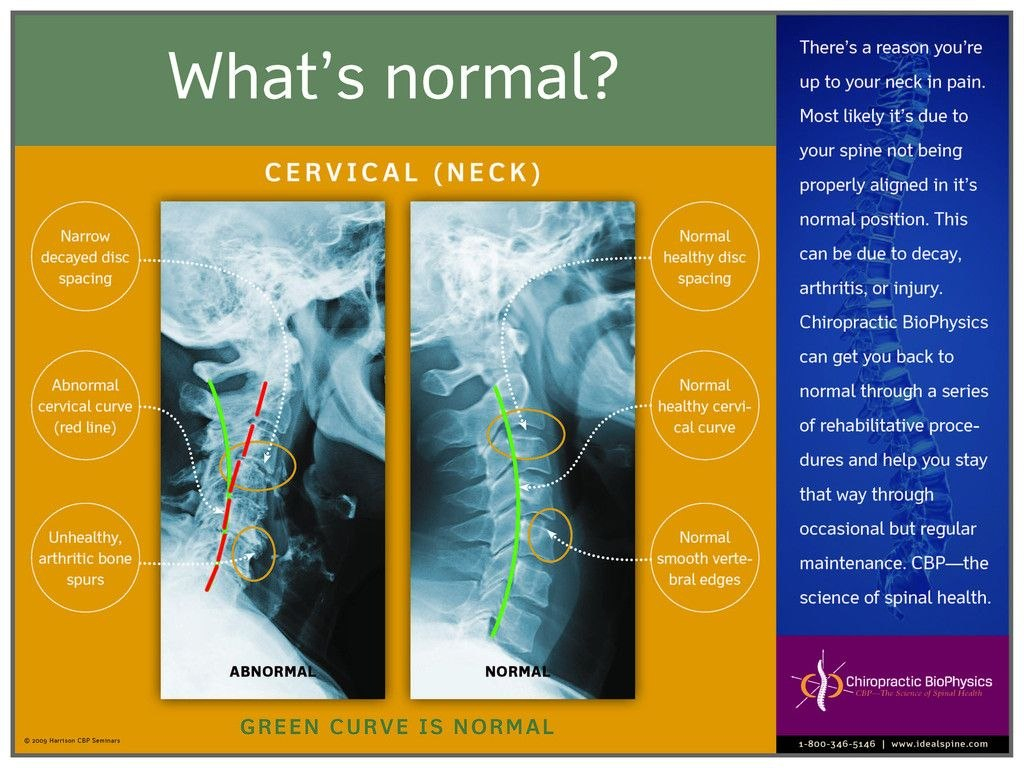Normal Vs Abnormal Cervical Xray – Chiropractic Biophysics Throughout Chiropractic X Ray Report Template