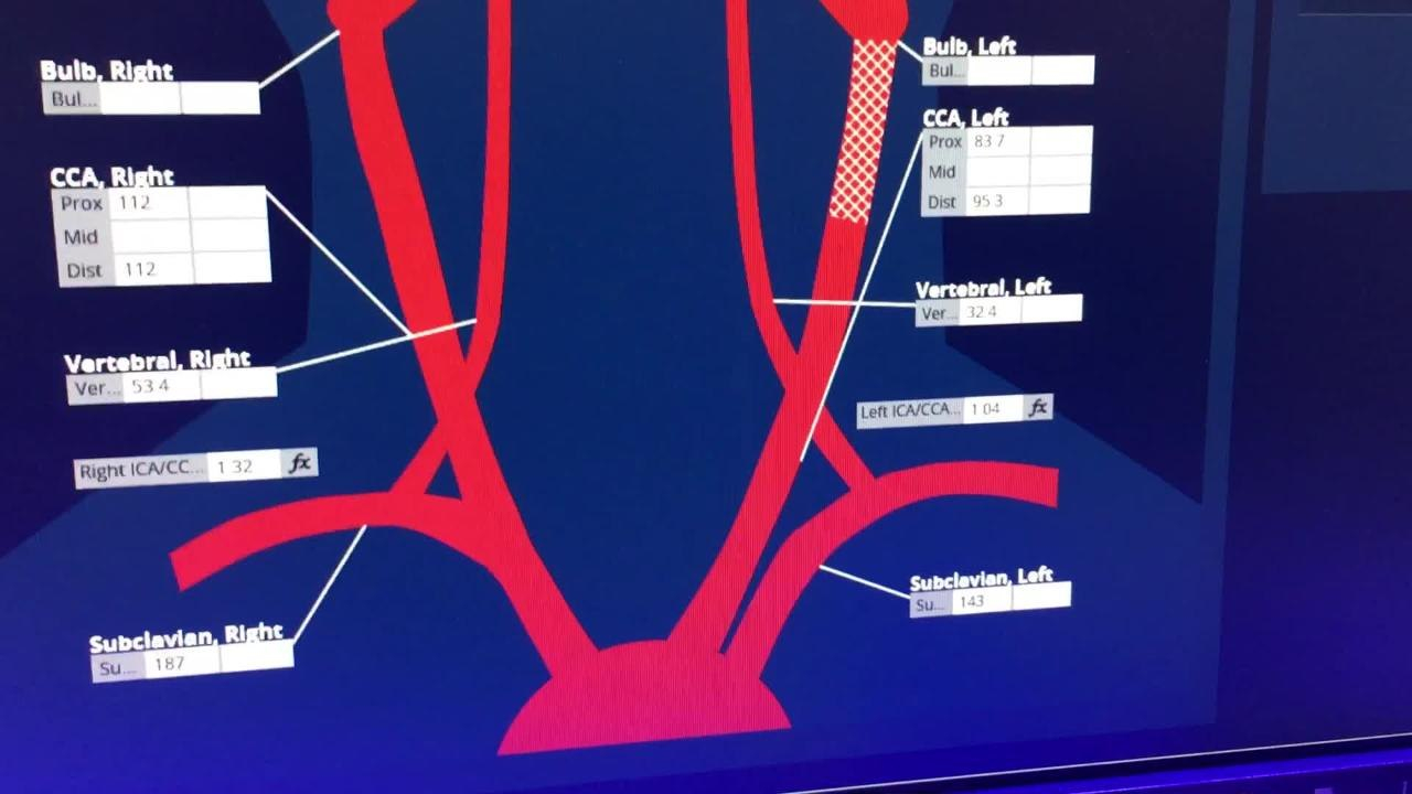 Video Carotid Artery Reporting Template Example  Daic Inside Carotid Ultrasound Report Template